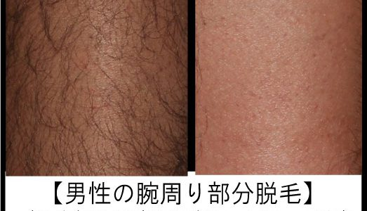 男性arms